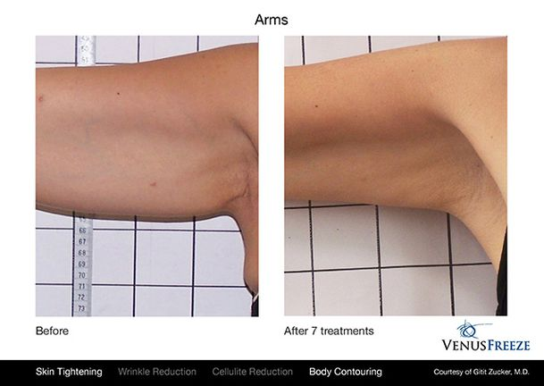 Venus Freeze | Before & After